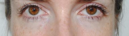 Clinique Even Better Eye Dark Circle Corrector - Before