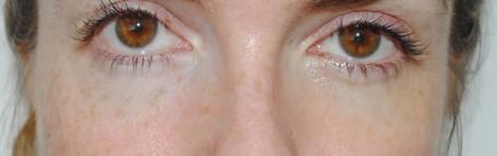 Clinique Even Better Eye Dark Circle Corrector - right eye