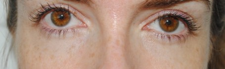 Clinique Even Better Eye Dark Circle Corrector -  After