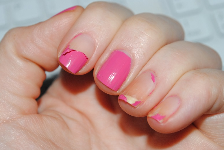 Peeling nails ~ Beautify themselves with sweet nails