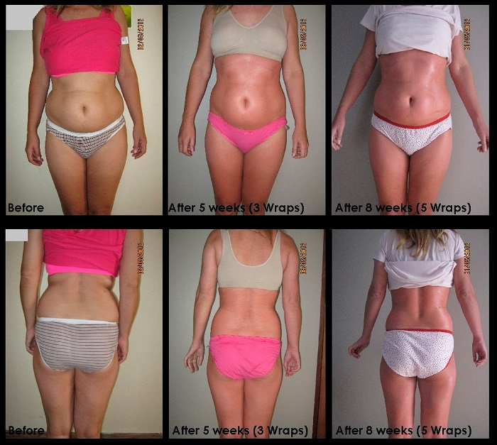 Bioslimming Body Wrap Treatment Review - Really Ree