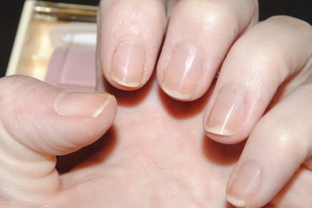 p-shine-nail-kit-after