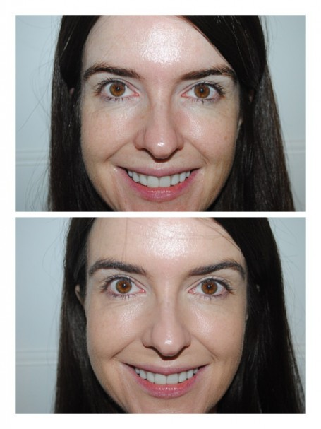 rimmel-bb-cream-matte-review-before-after-photos