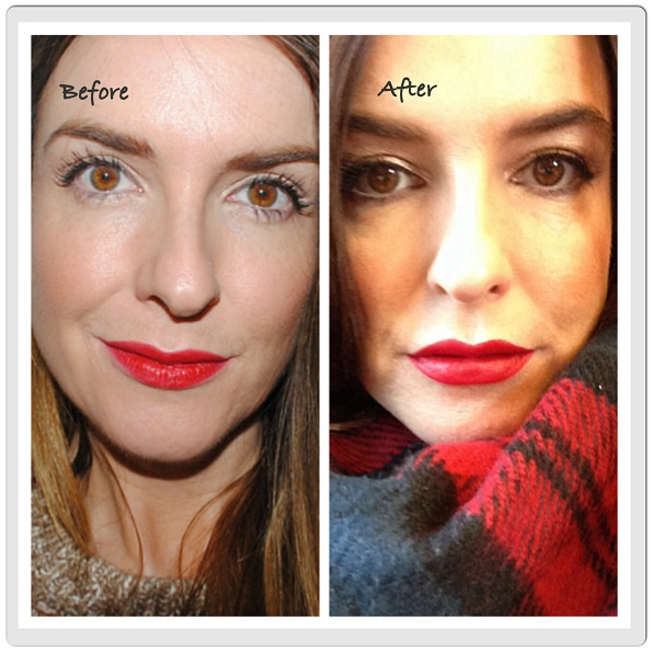 lip-fillers-before-after