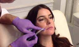 lip-fillers-courthouse-clinic1