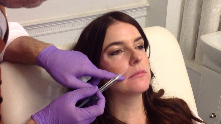 lip-fillers-courthouse-clinics