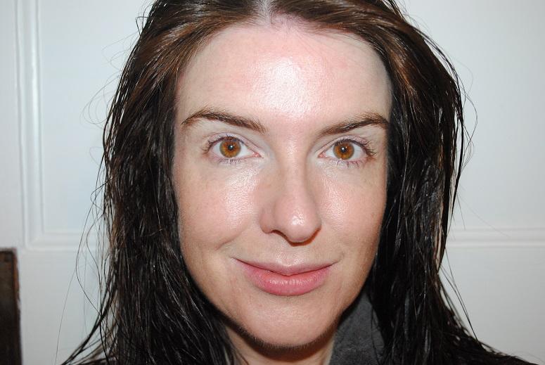 sarah-mcnamara-miracle-skin-transformer-spotlight-after-photo