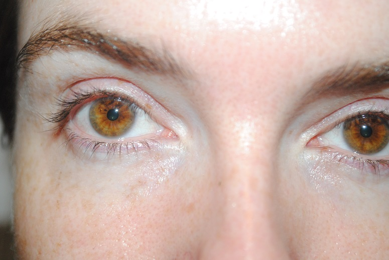 shiseido-benefiance-pure-retinol-eye-masks-review-after-photo