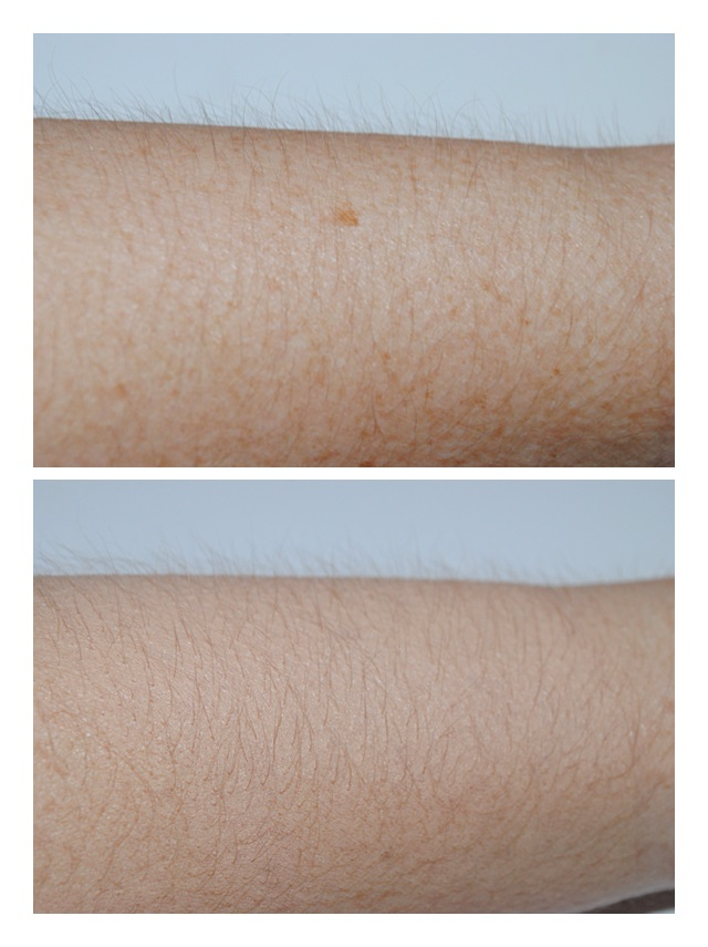 vichy-dermablend-total-body-corrective-foundation-review-before-after