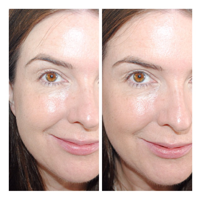 chantecaille-compact-soleil-bronzer-review-before-after