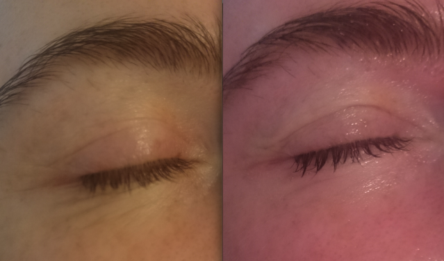marste-derm-facial-review-before-after-eyes