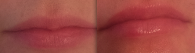 marste-derm-facial-review-before-after-lips