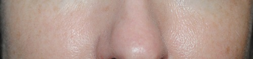 lancome-la-base-pro-pore-eraser-review-before-after