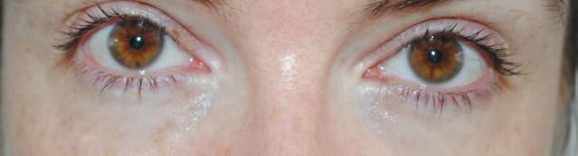 elemis-pro-radiance-illuminating-eye-balm-review-after