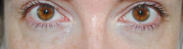 elemis-pro-radiance-illuminating-eye-balm-review-before