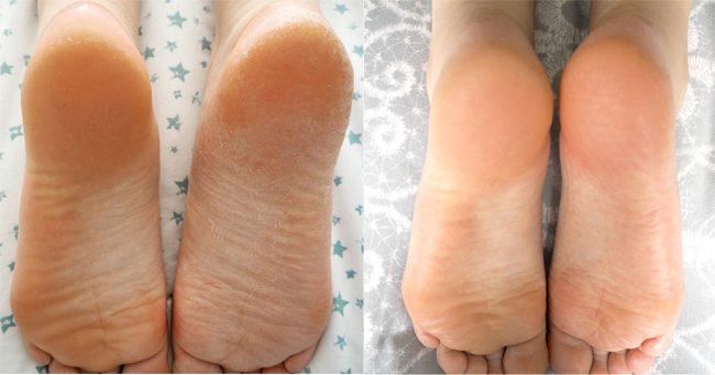 Skin Republic Foot Peel Before & After