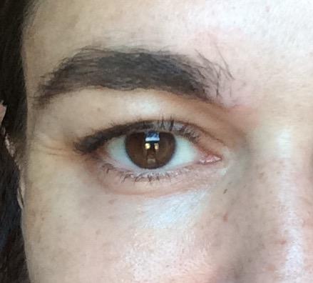 Filorga optim-eyes eye patch after photo