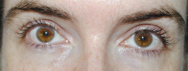 Murad Eye Lift Firming Treatment
