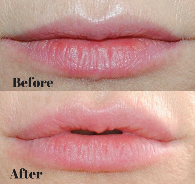 PMD Kiss Lip Plumper
