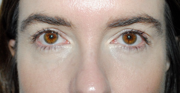 L'Oreal Paris Clinically Proven Lash Serum - 0 weeks