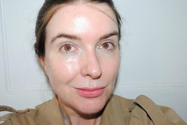 after retinol photo